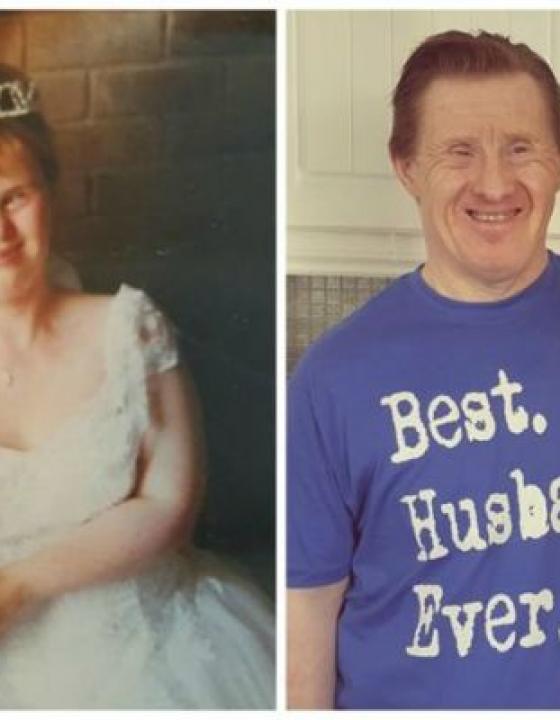22 let zakonske srečepara z Downovim sindromom